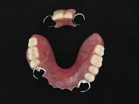 一般的な保険義歯